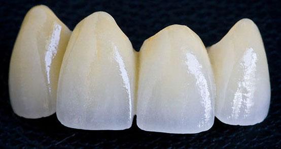 зубні коронки