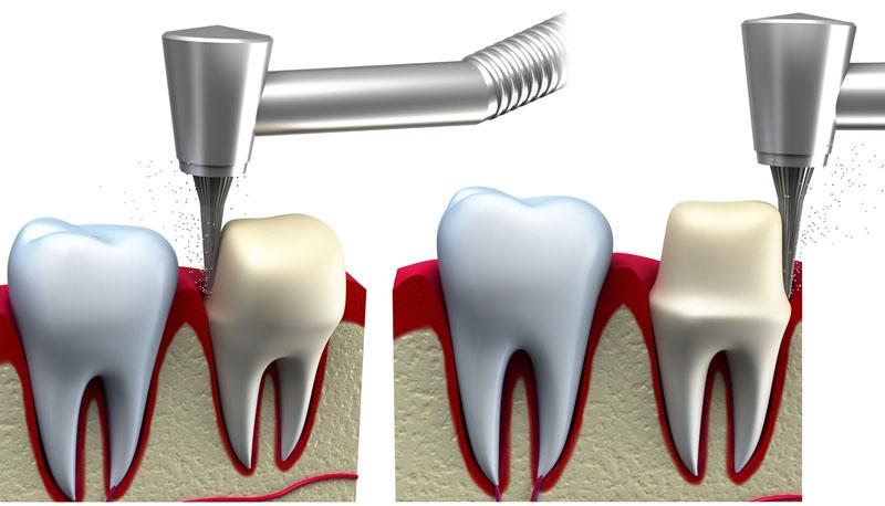 обточування зуба під коронку