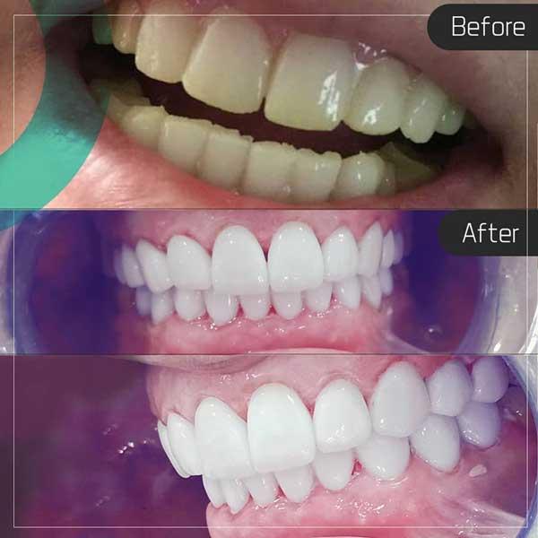 Відбілювання зубів c3033be327762