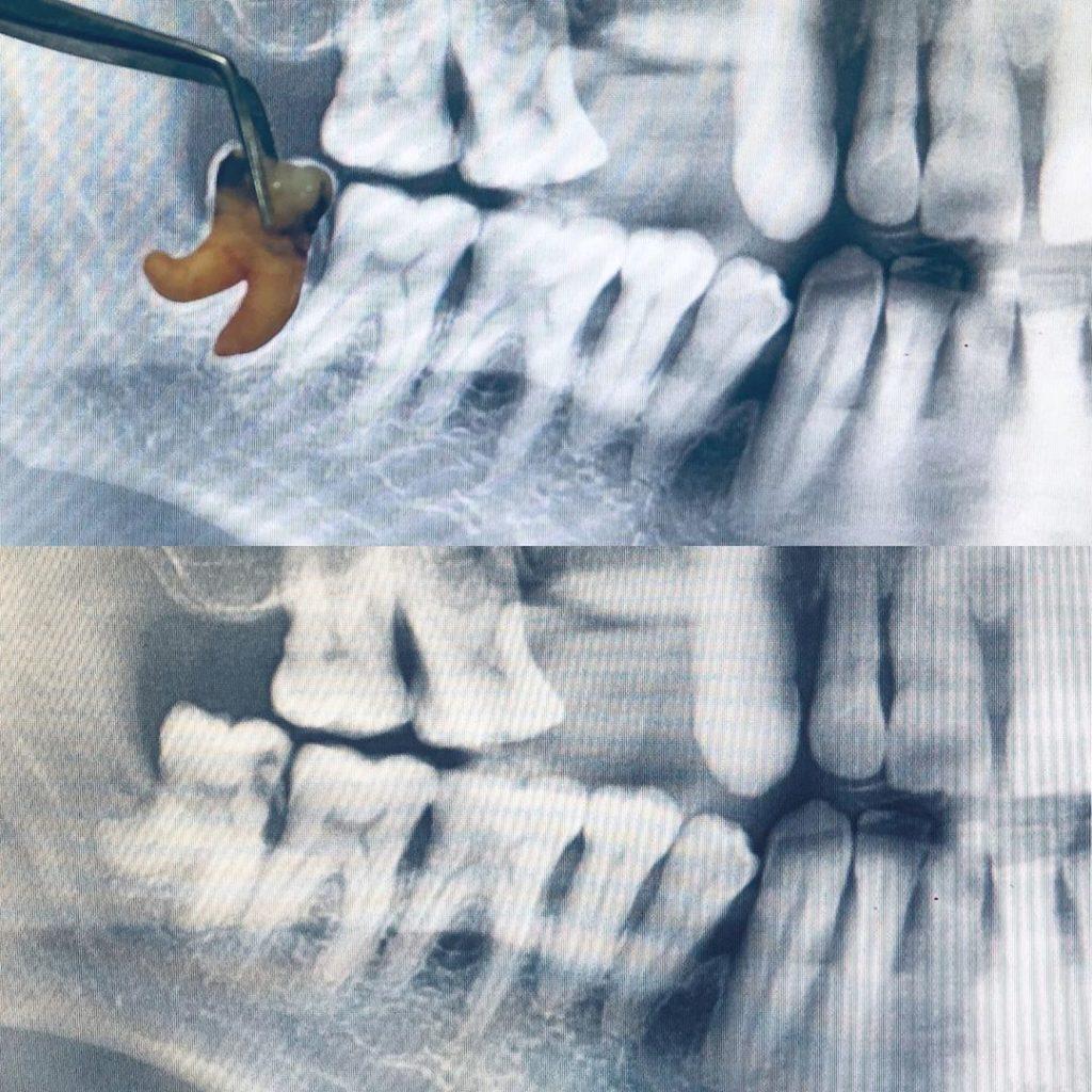 Рентген знімок зуба перед видаленням дозволяє лікарю краще підготуватись до операції.